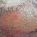 Dermatitis húmeda aguda